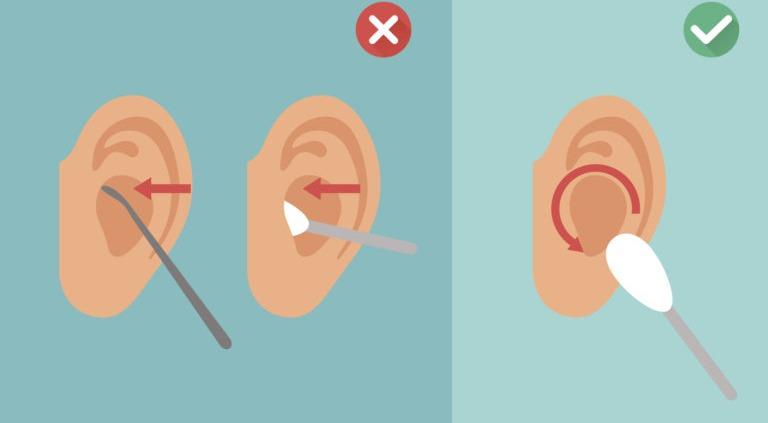 Barnstaple Microsuction earwax removal,